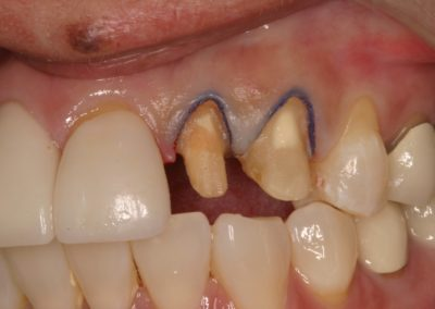 Dental Crown Before and After Photos