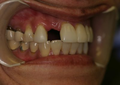 Dental Bridges Before and After Photos