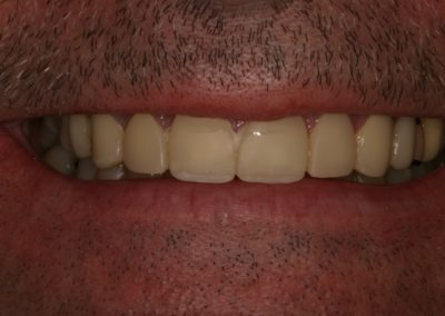 smile makeover with crowns