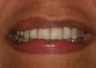 cosmetic dentistry crowns before and after