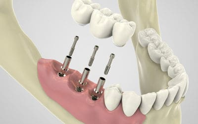 Most Common Questions about Dental Implants