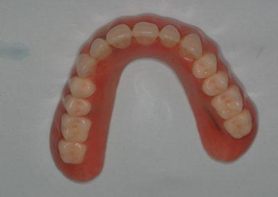 denture in san antonio
