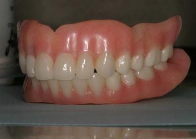 denture in San Antonio Precision Cosmetic Dentistry & Digital Dentures