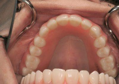 denture actual patient in san antonio