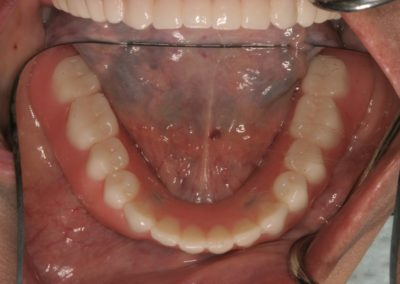 denture after - actual patient in san antonio