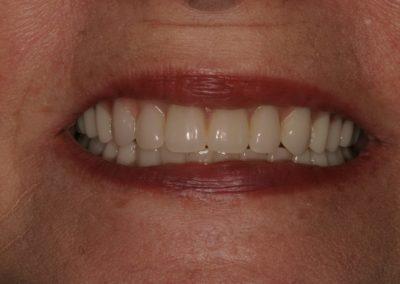 overdenture / snap on denture after patient in san antonio