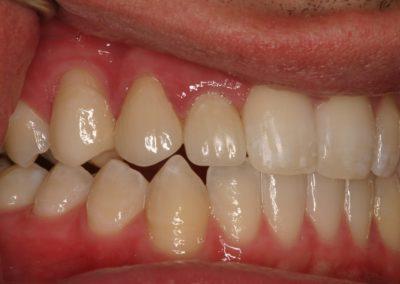 implant crown patient pictures