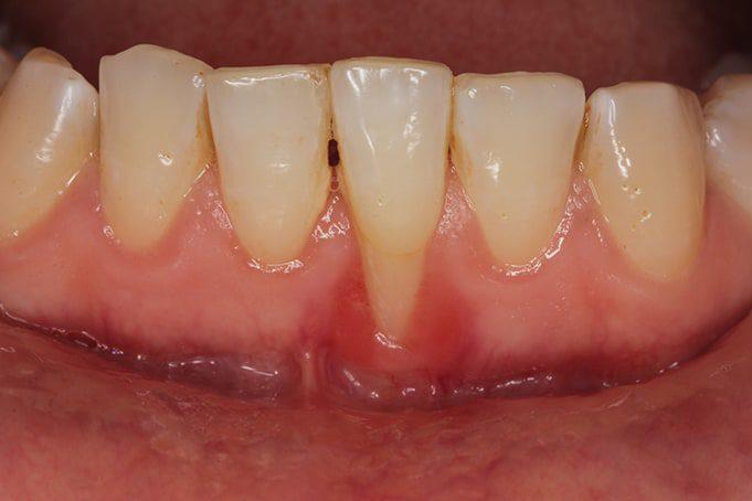 gum disease treatments in san antonio, tx
