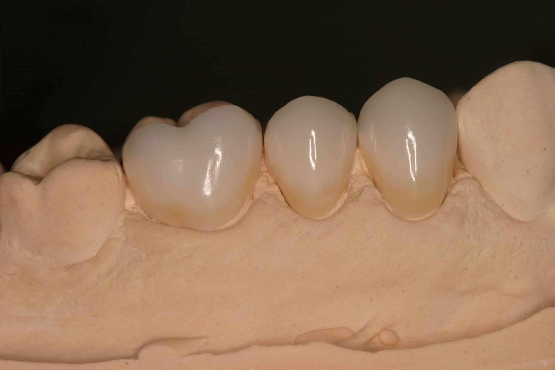 Restorative Dentistry Services Crowns