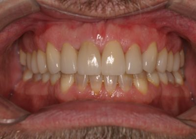 smile makeover pictures before after