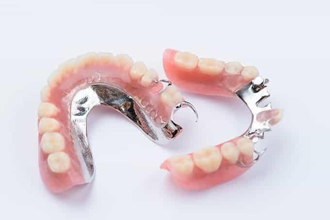 partial dentures in san antonio
