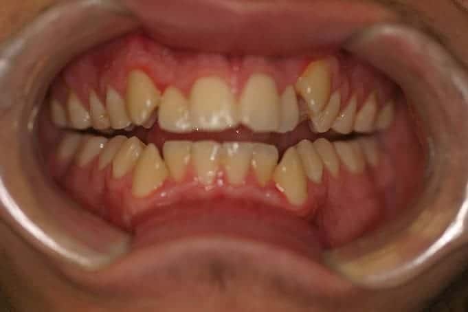 Teeth Straightening Invisalign Treatment